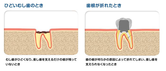 implant01_0102