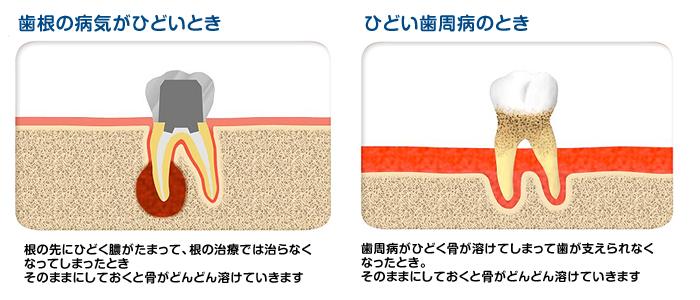 implant01_0304