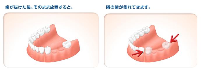 implant02_0102