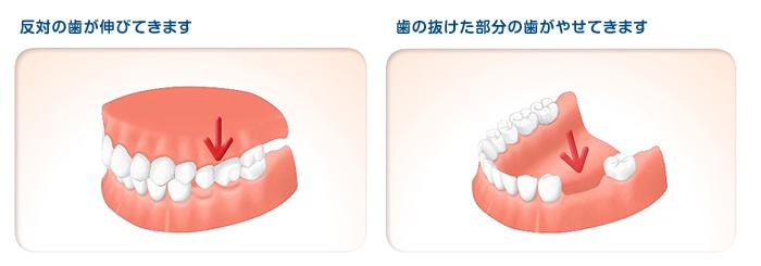 implant02_0304