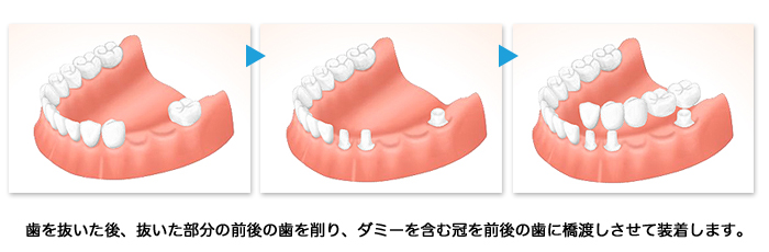 implant03_01