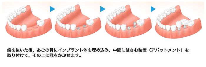 implant03_03