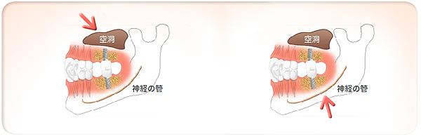 implant05_01