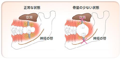implant05_01_03