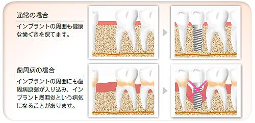 implant05_02