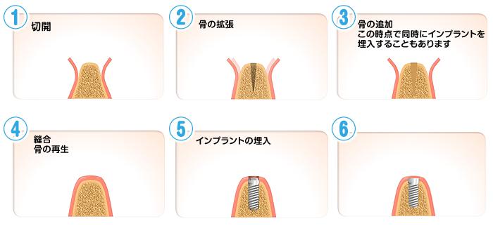 implant06_04