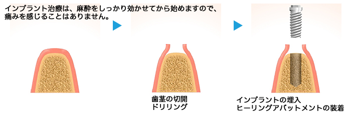 implant07_01