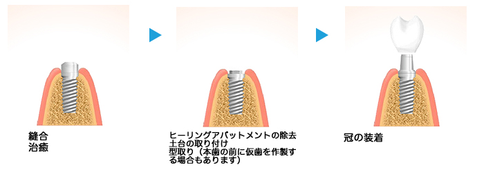 implant07_02