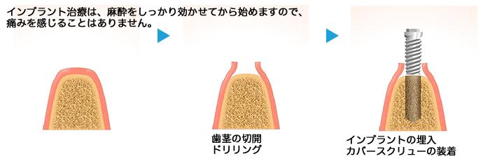 implant08_01