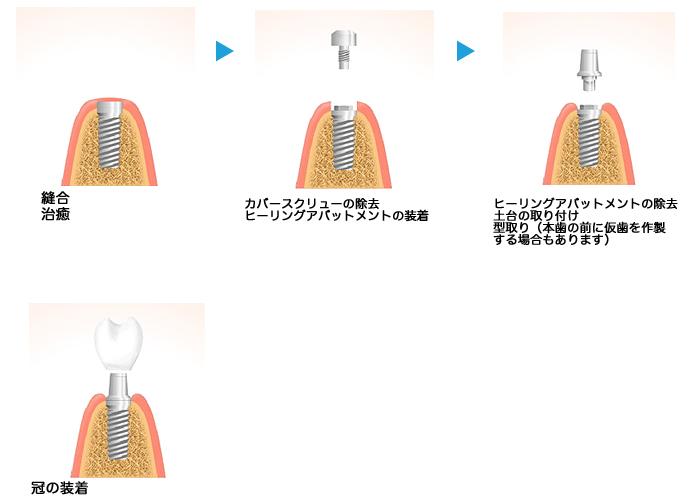 implant08_02