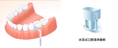 implant11_04