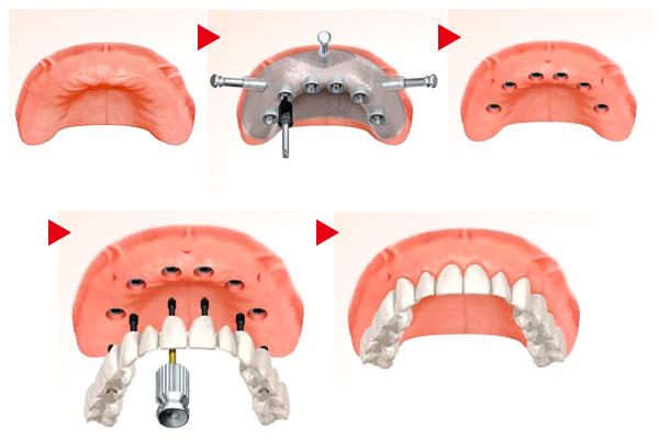 implant12_02