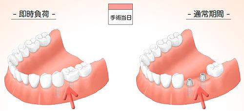 implant13_01