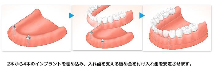 implant14_01