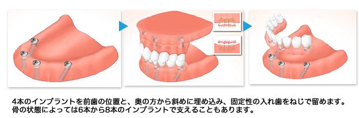 implant14_02