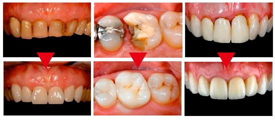 implant15_01